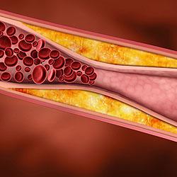от образуется холестерин крови